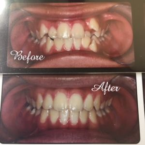 Top to Bottom before and after teeth treatment